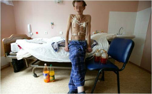 怎么判断吸毒毒瘾症状是否严重?