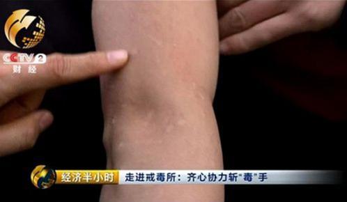 吸食冰毒皮肤过敏怎么办?