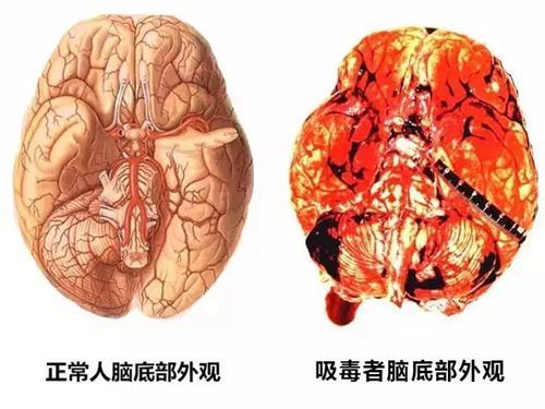 吸毒成瘾这种慢性脑部疾病还有得治吗?