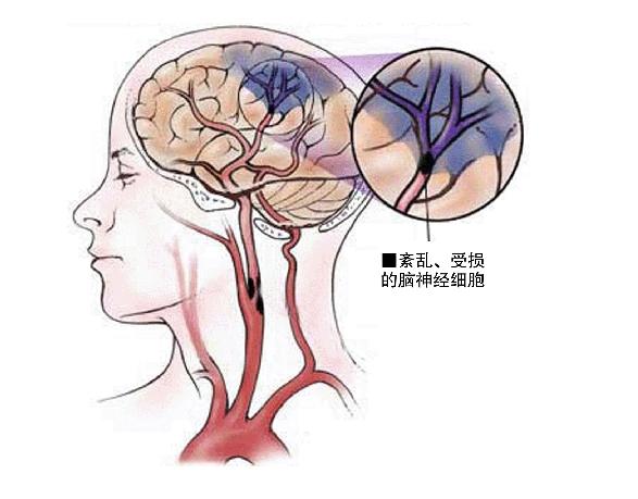 为什么吸冰毒总有幻觉想自杀?都是大脑病变导致的精神障碍!